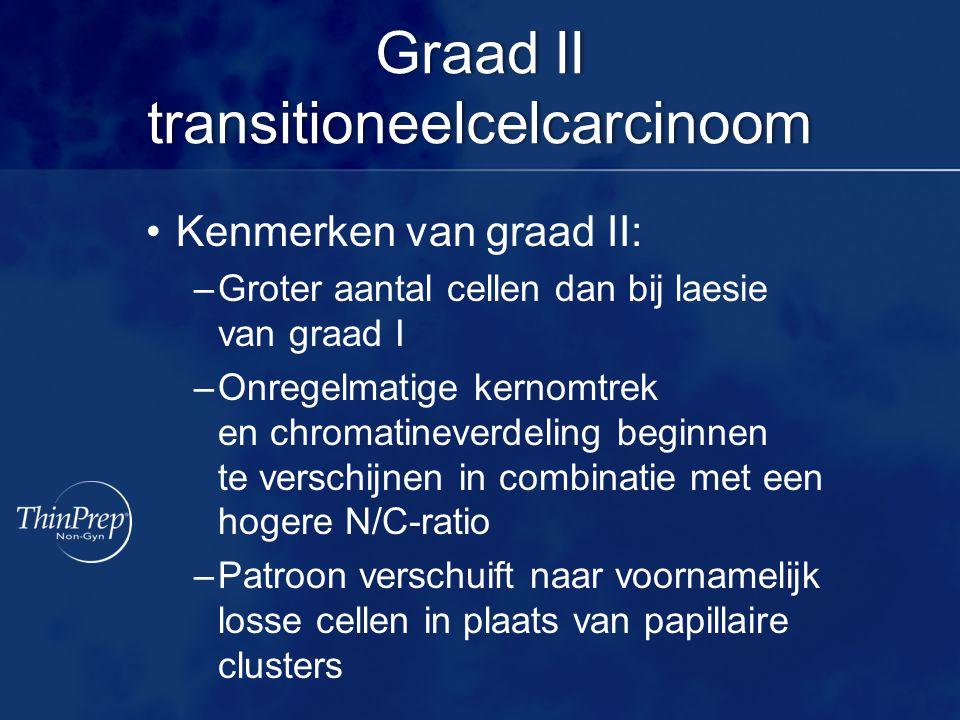 Graad II transitioneelcelcarcinoom Kenmerken van graad II: –Groter aantal cellen dan bij laesie van graad I –Onregelmatige kernomtrek en chromatineverdeling beginnen te verschijnen in combinatie met een hogere N/C-ratio –Patroon verschuift naar voornamelijk losse cellen in plaats van papillaire clusters