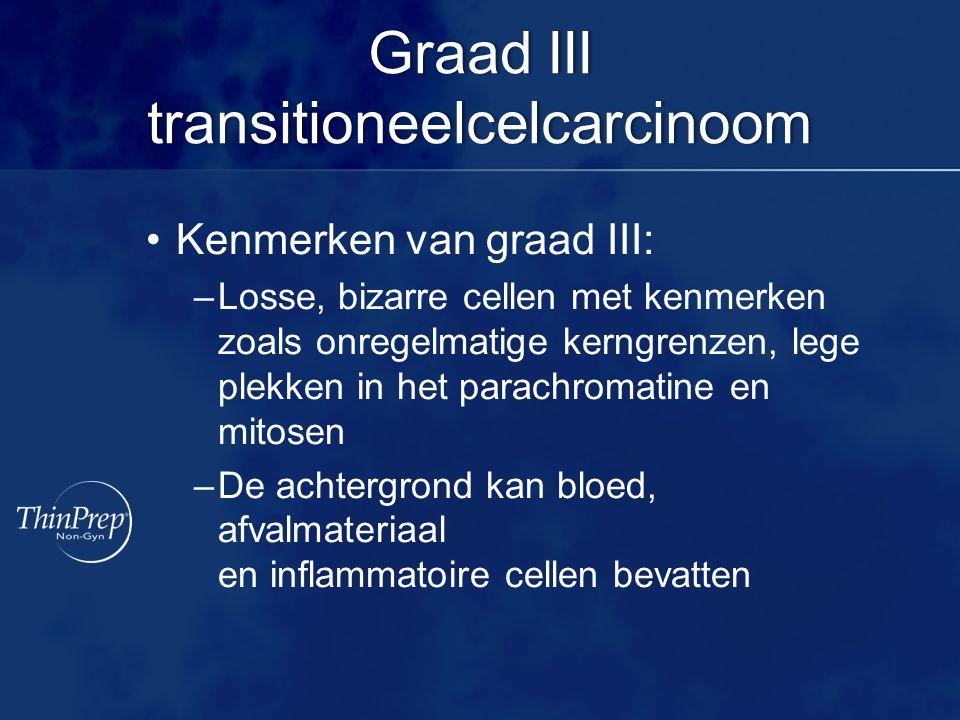 Graad III transitioneelcelcarcinoom Kenmerken van graad III: –Losse, bizarre cellen met kenmerken zoals onregelmatige kerngrenzen, lege plekken in het parachromatine en mitosen –De achtergrond kan bloed, afvalmateriaal en inflammatoire cellen bevatten