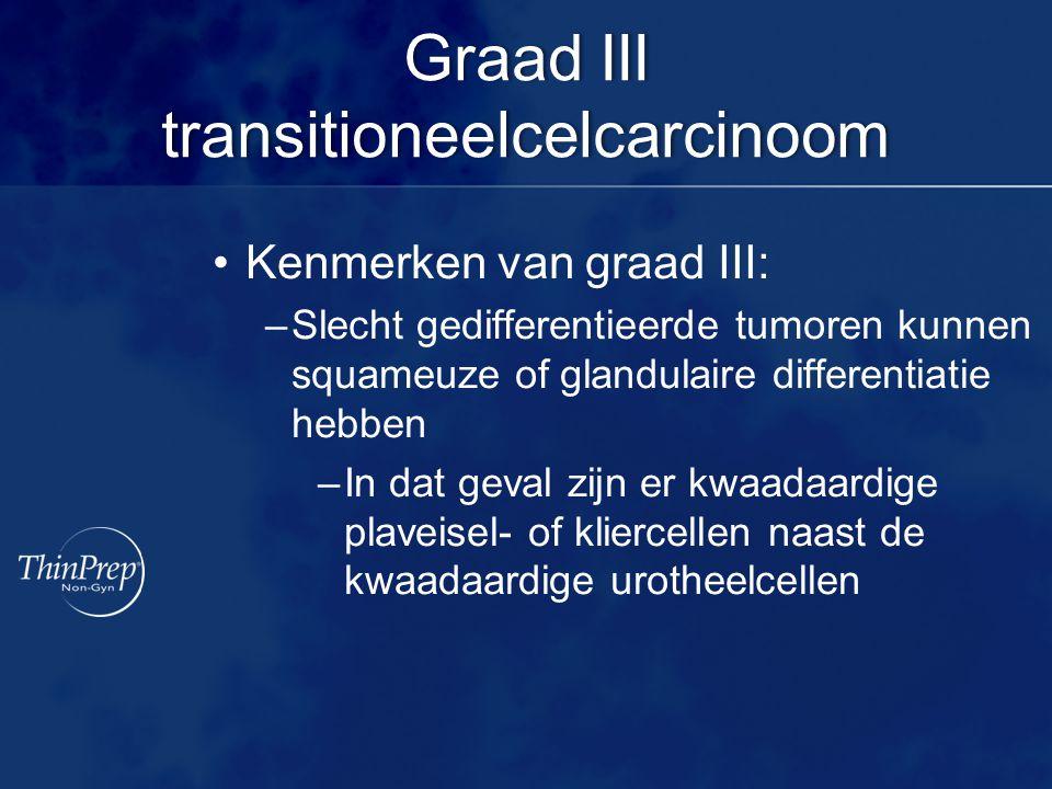 Graad III transitioneelcelcarcinoom Kenmerken van graad III: –Slecht gedifferentieerde tumoren kunnen squameuze of glandulaire differentiatie hebben –In dat geval zijn er kwaadaardige plaveisel- of kliercellen naast de kwaadaardige urotheelcellen