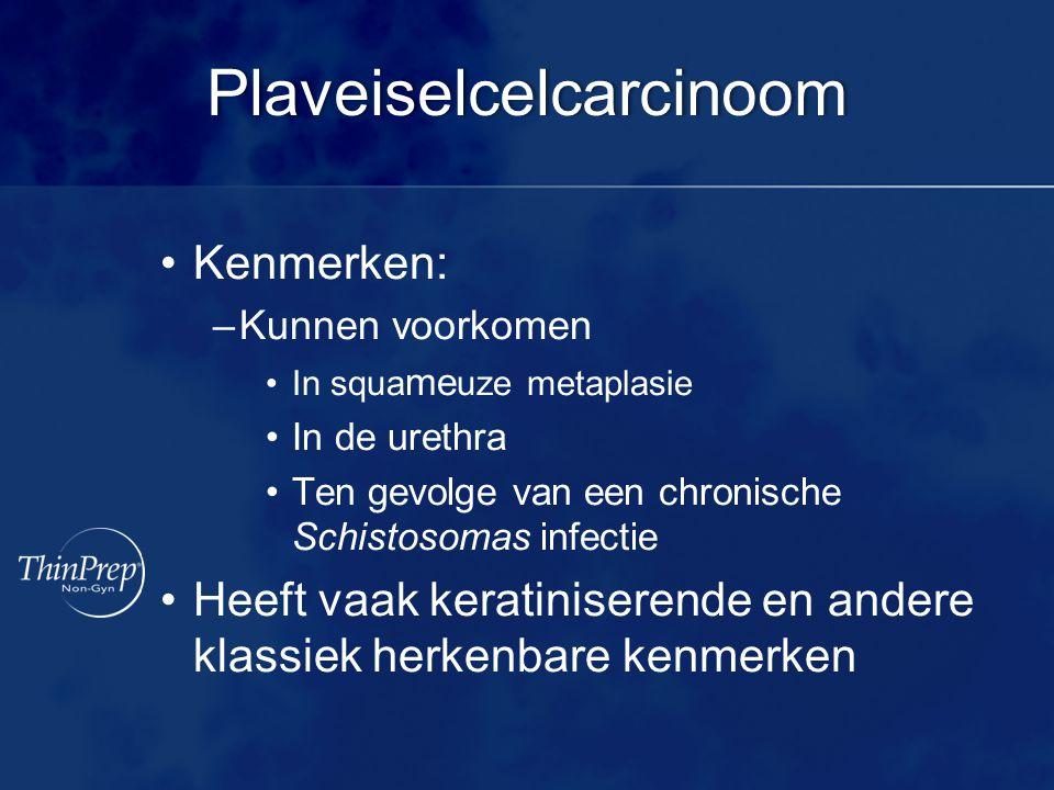 Plaveiselcelcarcinoom Kenmerken: –Kunnen voorkomen In squa me uze metaplasie In de urethra Ten gevolge van een chronische Schistosomas infectie Heeft vaak keratiniserende en andere klassiek herkenbare kenmerken