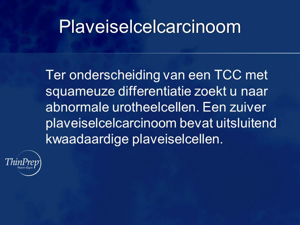 Plaveiselcelcarcinoom Ter onderscheiding van een TCC met squameuze differentiatie zoekt u naar abnormale urotheelcellen. Een zuiver plaveiselcelcarcin