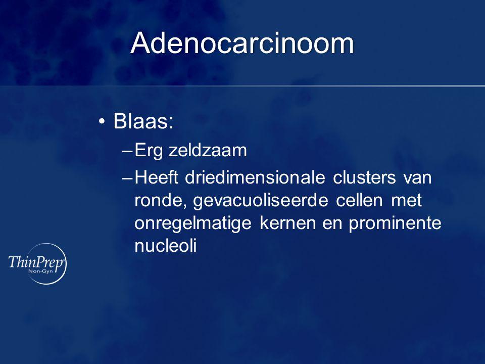 Adenocarcinoom Blaas: –Erg zeldzaam –Heeft driedimensionale clusters van ronde, gevacuoliseerde cellen met onregelmatige kernen en prominente nucleoli