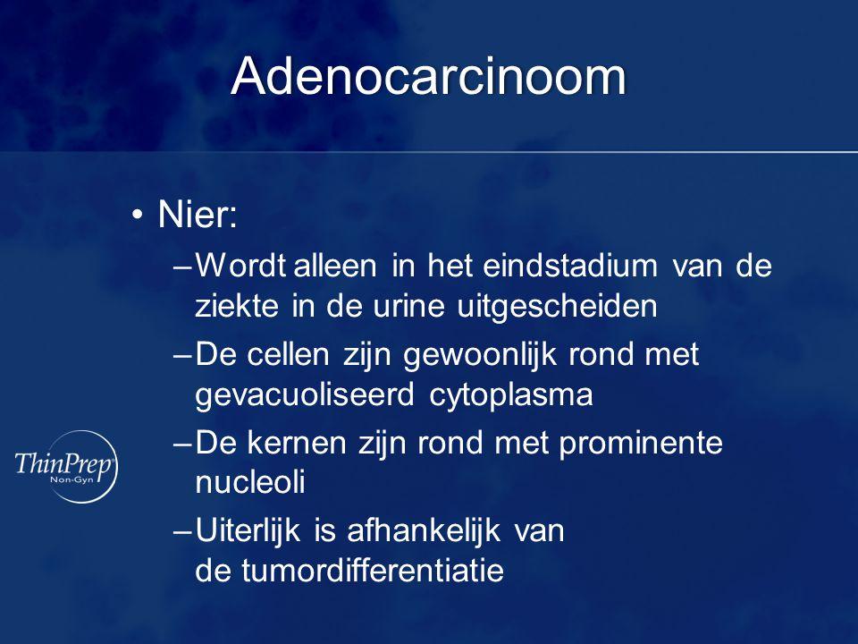 Adenocarcinoom Nier: –Wordt alleen in het eindstadium van de ziekte in de urine uitgescheiden –De cellen zijn gewoonlijk rond met gevacuoliseerd cytoplasma –De kernen zijn rond met prominente nucleoli –Uiterlijk is afhankelijk van de tumordifferentiatie
