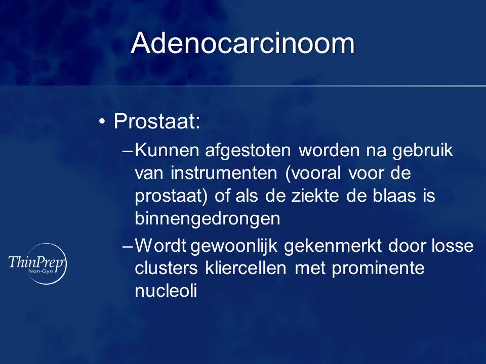 Adenocarcinoom Prostaat: –Kunnen afgestoten worden na gebruik van instrumenten (vooral voor de prostaat) of als de ziekte de blaas is binnengedrongen –Wordt gewoonlijk gekenmerkt door losse clusters kliercellen met prominente nucleoli
