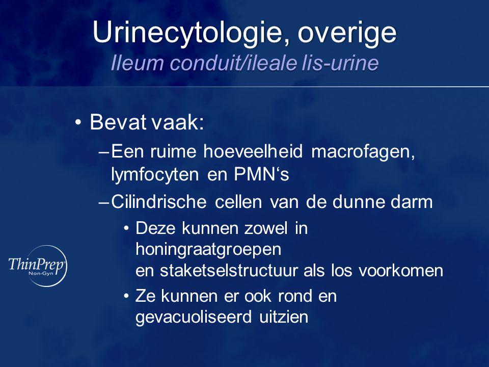 Urinecytologie, overige Ileum conduit/ileale lis-urine Bevat vaak: –Een ruime hoeveelheid macrofagen, lymfocyten en PMN's –Cilindrische cellen van de dunne darm Deze kunnen zowel in honingraatgroepen en staketselstructuur als los voorkomen Ze kunnen er ook rond en gevacuoliseerd uitzien