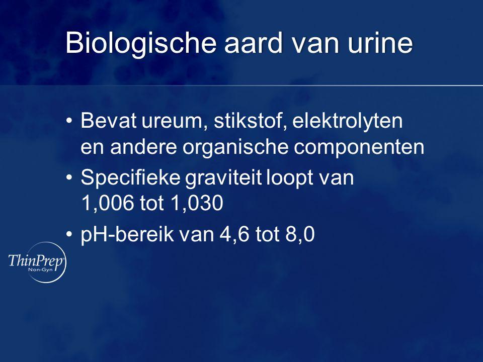 Biologische aard van urineBiologische aard van urine Bevat ureum, stikstof, elektrolyten en andere organische componenten Specifieke graviteit loopt v