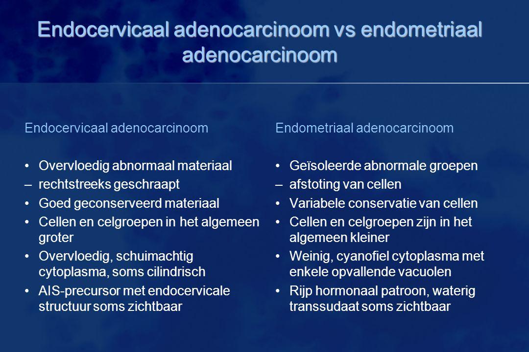 Endocervicaal adenocarcinoom vs endometriaal adenocarcinoom Endocervicaal adenocarcinoom Overvloedig abnormaal materiaal –rechtstreeks geschraapt Goed