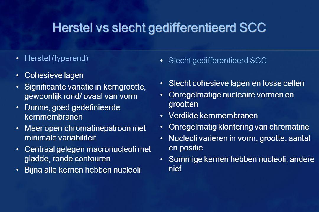 Herstel vs slecht gedifferentieerd SCC Slecht gedifferentieerd SCC Slecht cohesieve lagen en losse cellen Onregelmatige nucleaire vormen en grootten V