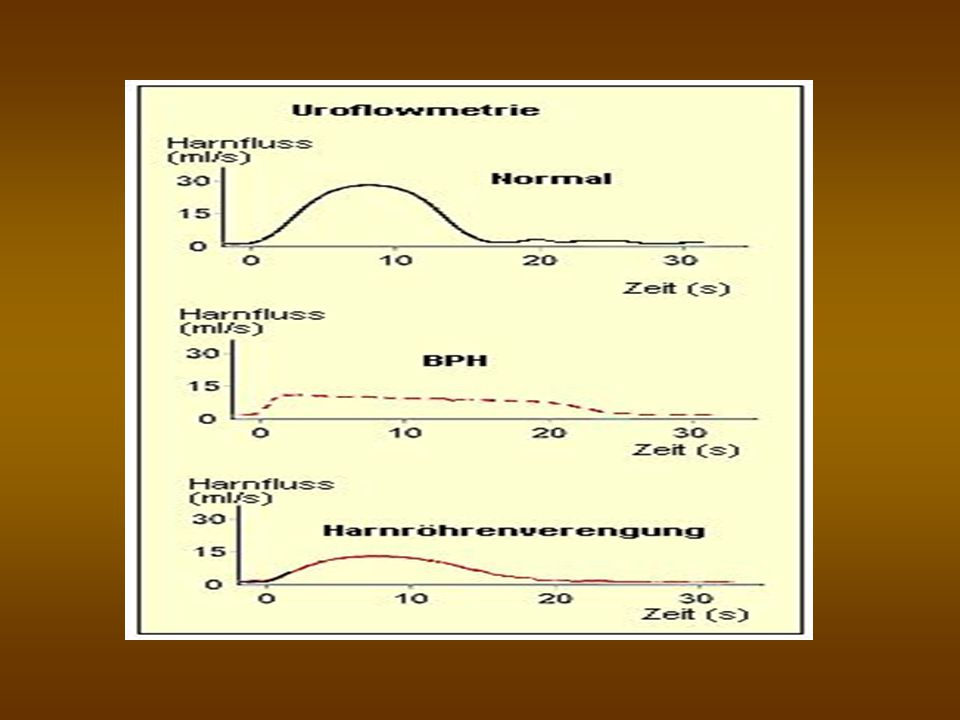 Behandeling van functionele obstructie Medicamenten om de outflow te verbeteren: Sympatolytica (α-blokkers) Hytrin > Terazosabb Xatral Omic Ocas GEVEN ORTHOSTATISCHE HYPOTENSIE