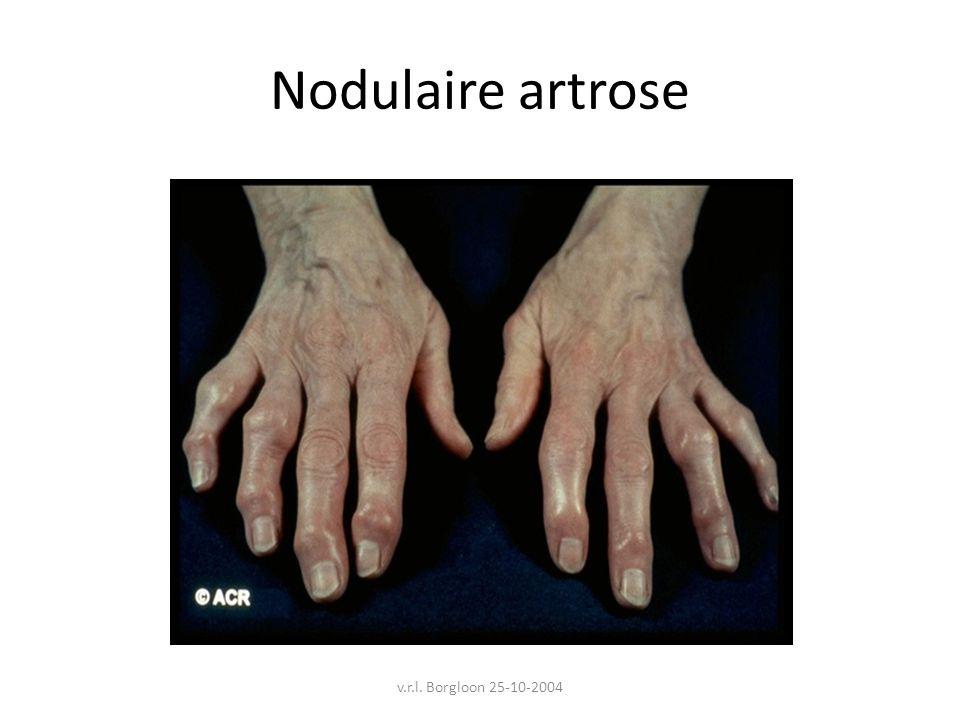 v.r.l. Borgloon 25-10-2004 Nodulaire artrose