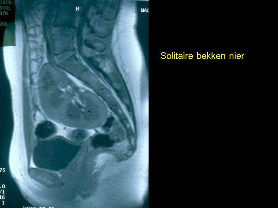 Solitaire bekken nier