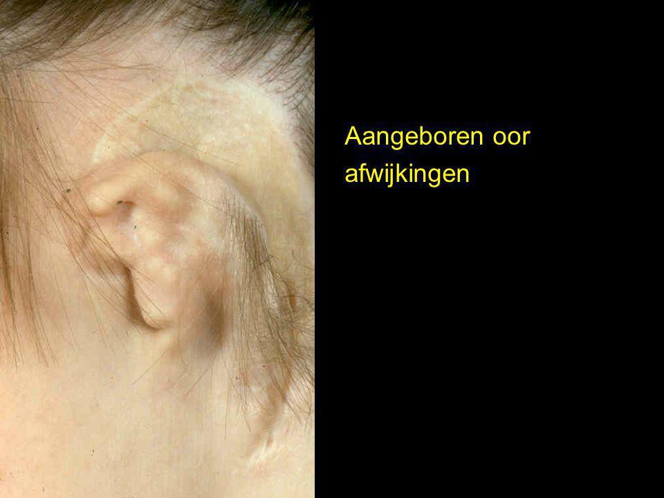 Aangeboren oor afwijkingen