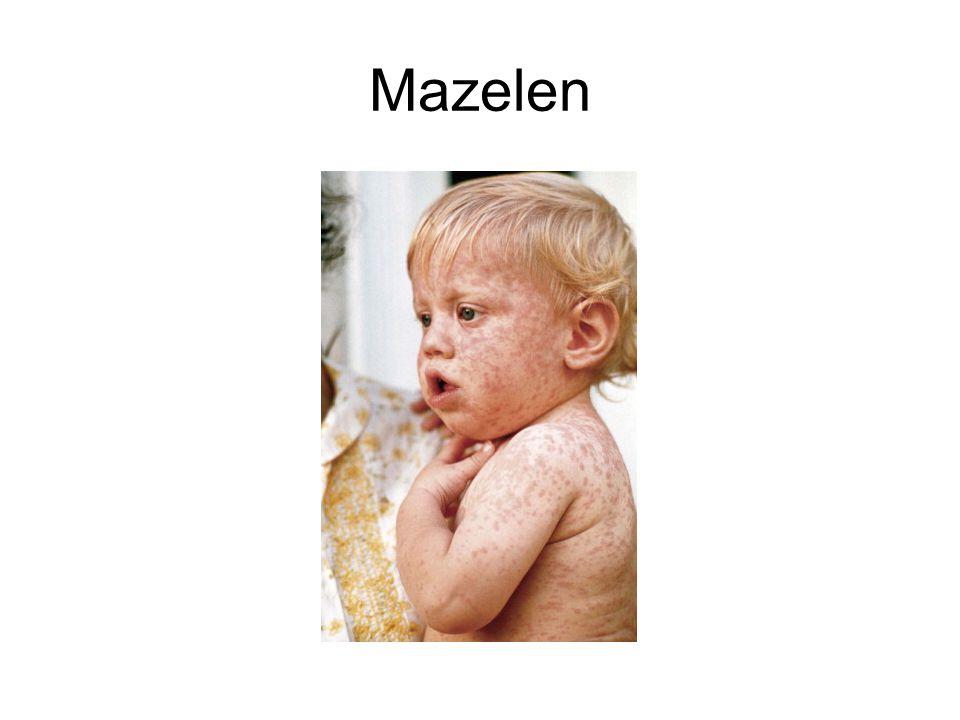 Mazelen
