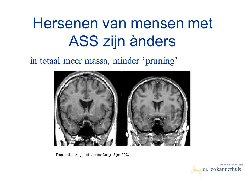 Hersenen van mensen met ASS zijn ànders in totaal meer massa, minder 'pruning' Plaatje uit: lezing prof. van der Gaag 17 jan.2008
