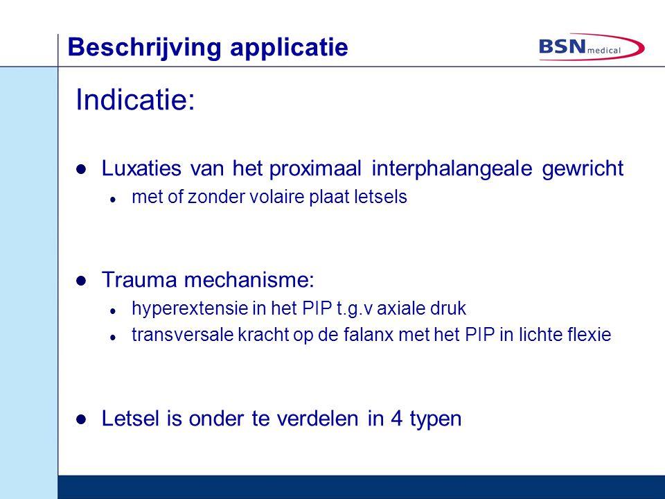 Beschrijving applicatie Indicatie: Luxaties van het proximaal interphalangeale gewricht met of zonder volaire plaat letsels Trauma mechanisme: hyperex