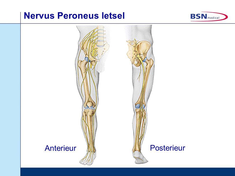 Nervus Peroneus letsel Anterieur Posterieur