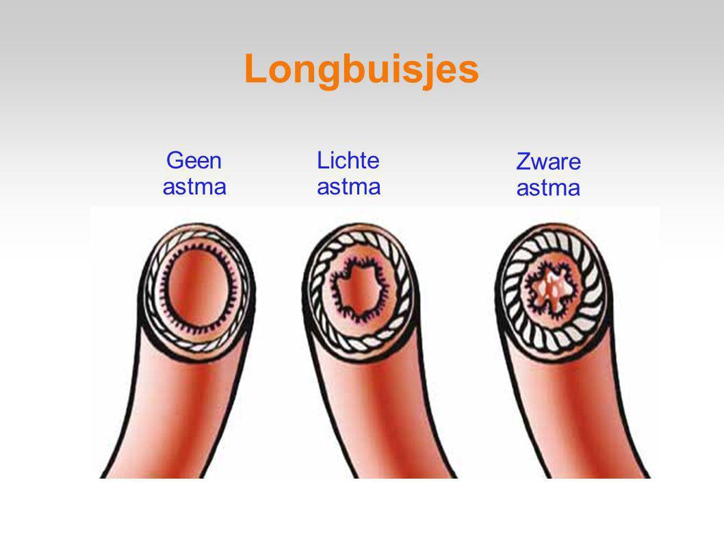 Geen astma Lichte astma Zware astma Longbuisjes