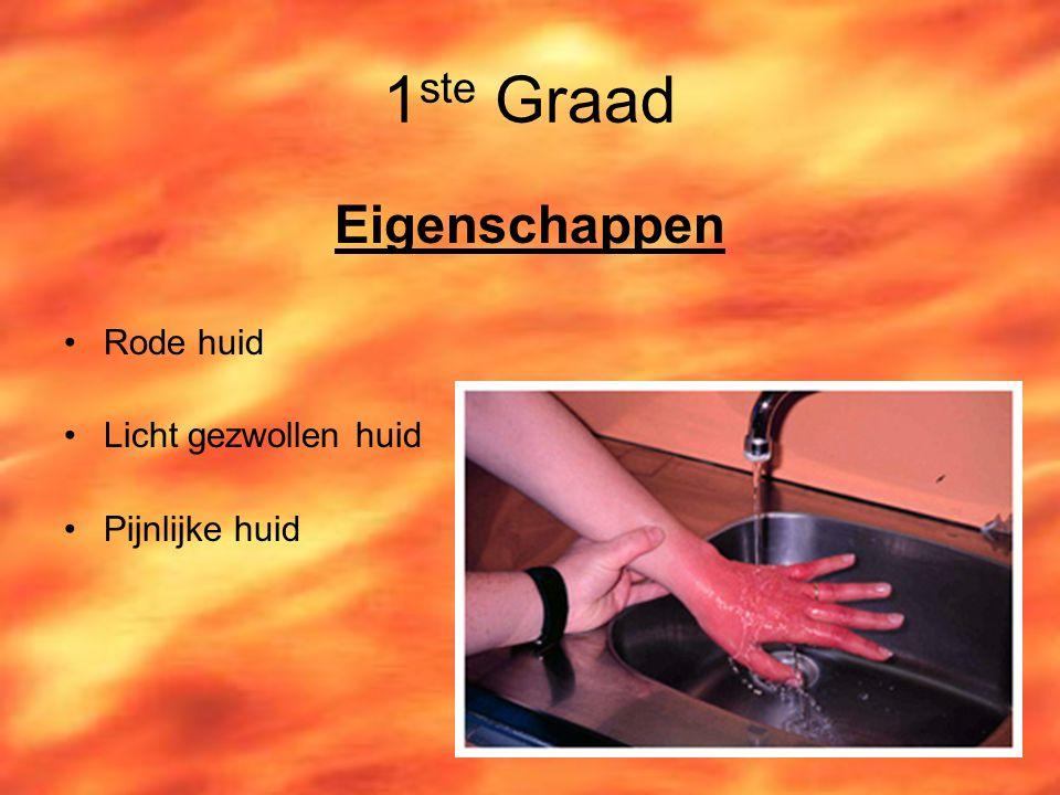 1 ste Graad Eigenschappen Rode huid Licht gezwollen huid Pijnlijke huid