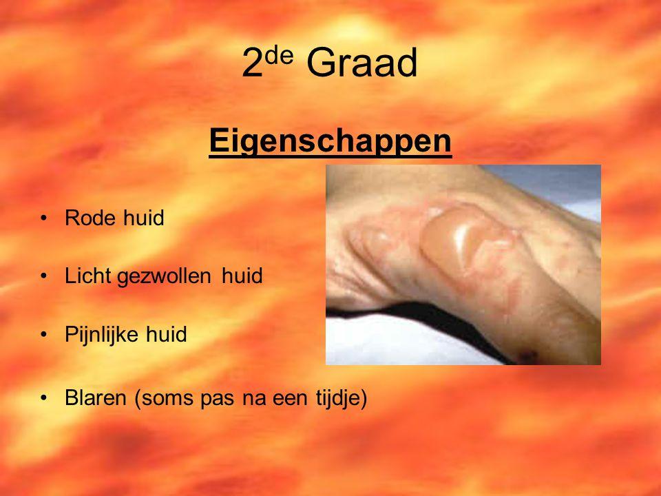 2 de Graad Eigenschappen Rode huid Licht gezwollen huid Pijnlijke huid Blaren (soms pas na een tijdje)