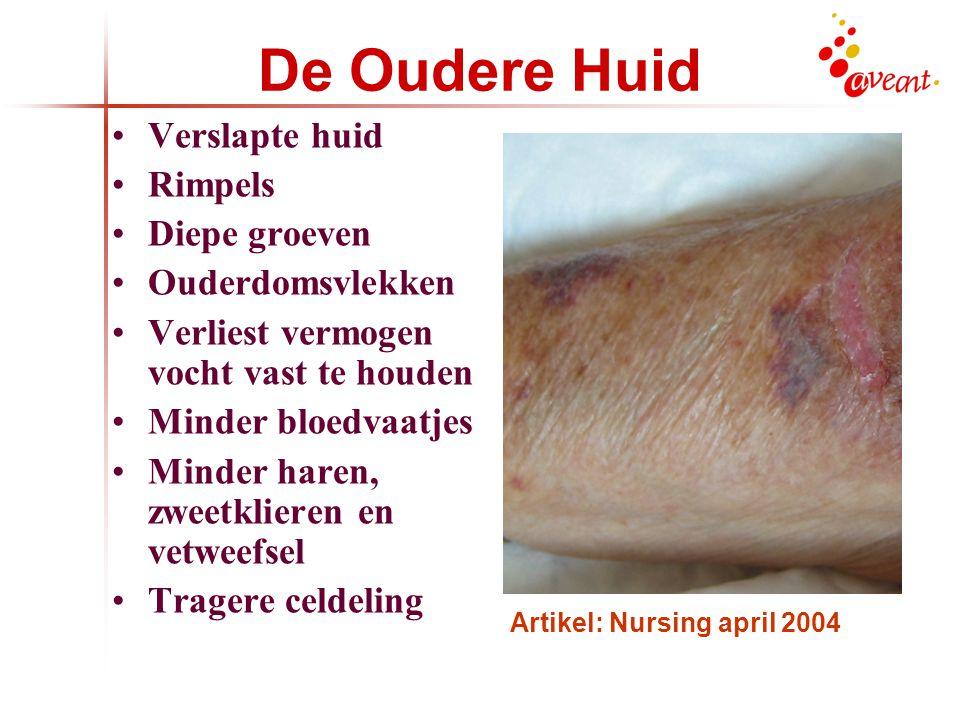De Oudere Huid Verslapte huid Rimpels Diepe groeven Ouderdomsvlekken Verliest vermogen vocht vast te houden Minder bloedvaatjes Minder haren, zweetklieren en vetweefsel Tragere celdeling Artikel: Nursing april 2004