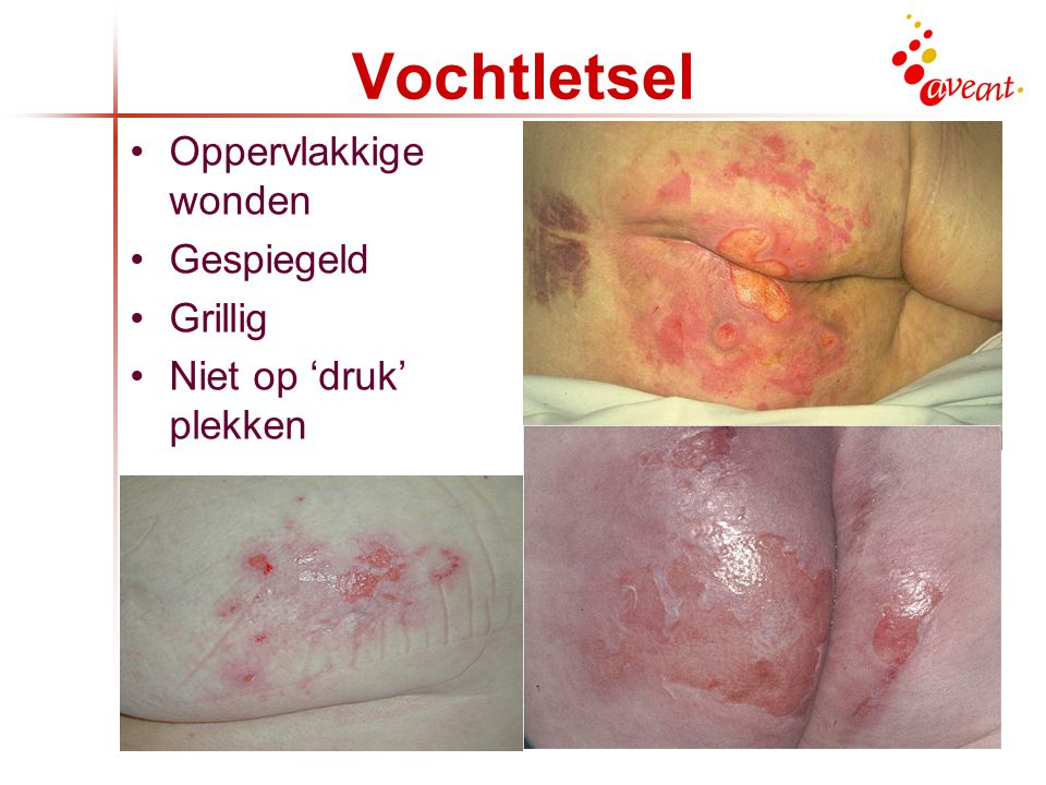 Skin Tears Tere huid Medicatie Stoten Vastpakken