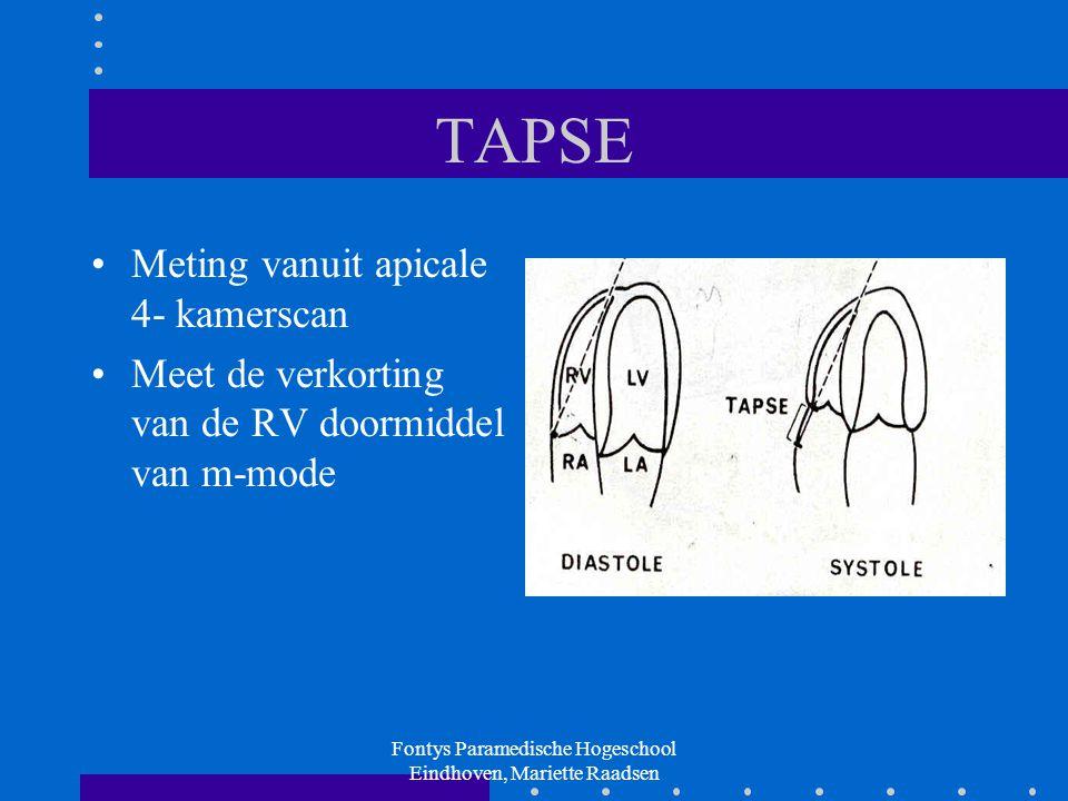 Fontys Paramedische Hogeschool Eindhoven, Mariette Raadsen TAPSE Meting vanuit apicale 4- kamerscan Meet de verkorting van de RV doormiddel van m-mode