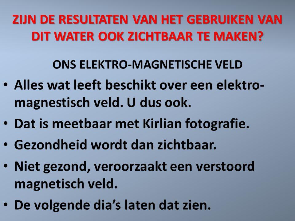 ZIJN DE RESULTATEN VAN HET GEBRUIKEN VAN DIT WATER OOK ZICHTBAAR TE MAKEN? ONS ELEKTRO-MAGNETISCHE VELD Alles wat leeft beschikt over een elektro- mag