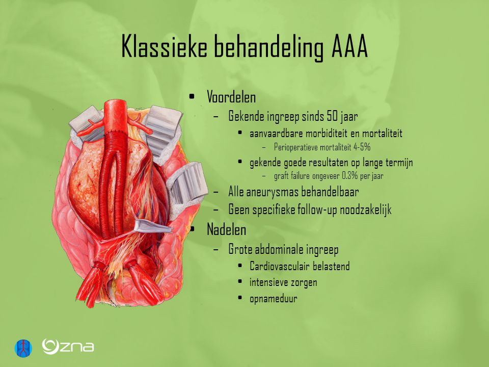 Klassieke behandeling AAA Voordelen –Gekende ingreep sinds 50 jaar aanvaardbare morbiditeit en mortaliteit –Perioperatieve mortaliteit 4-5% gekende go