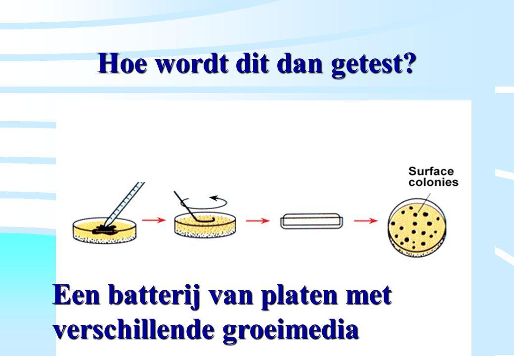 De microbiële cel, november 2008: colleges Westerhoff Hoe wordt dit dan getest? Een batterij van platen met verschillende groeimedia