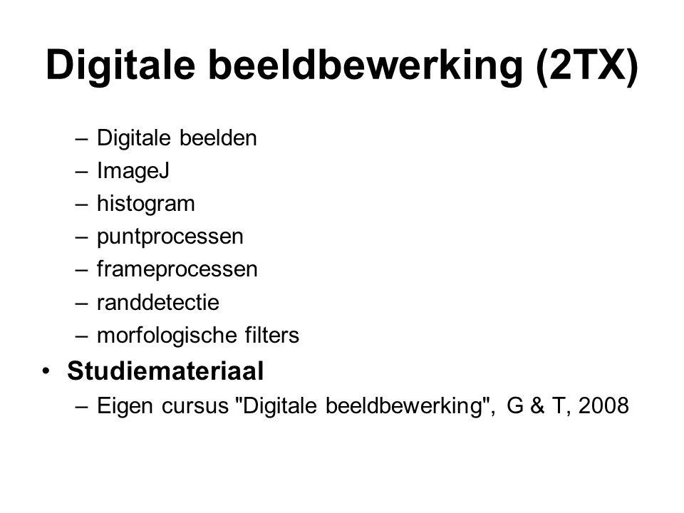 Digitale beeldbewerking (2TX) –Digitale beelden –ImageJ –histogram –puntprocessen –frameprocessen –randdetectie –morfologische filters Studiemateriaal
