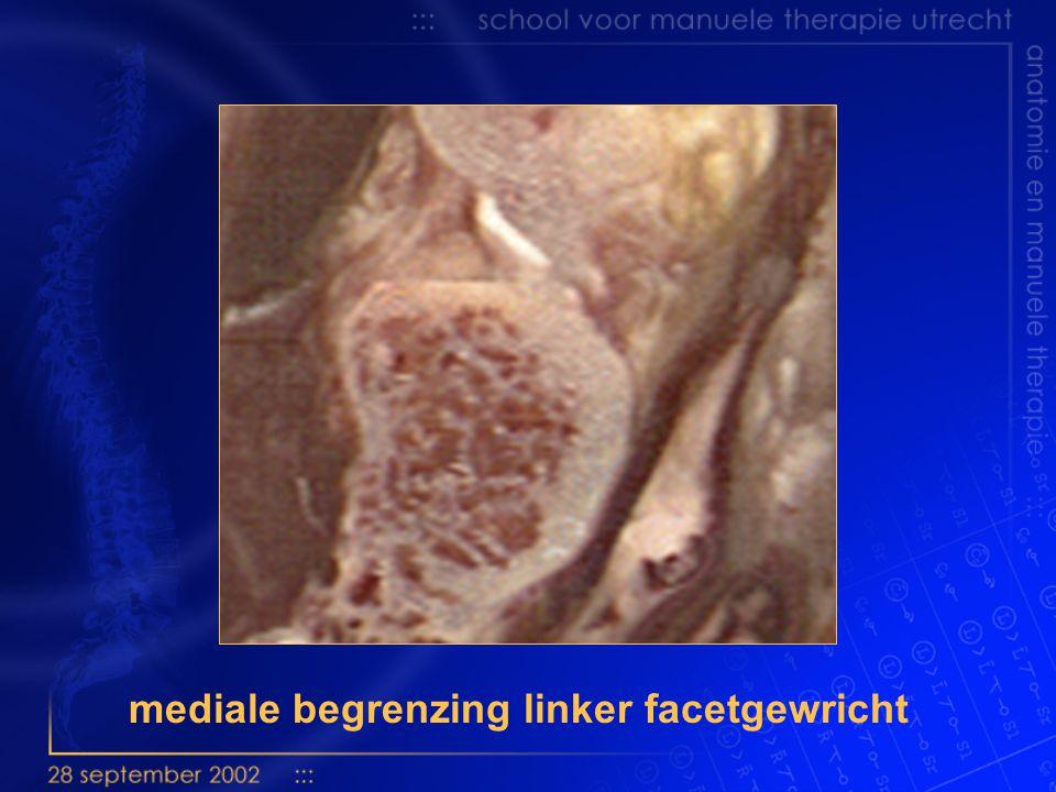 zijaanzicht gewrichtsprofielen van C 2 mediaal lateraal
