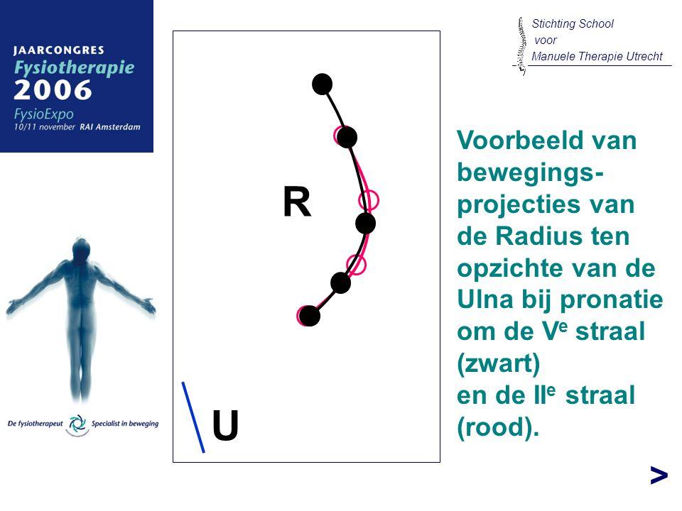> R U Voorbeeld van bewegings- projecties van de Radius ten opzichte van de Ulna bij pronatie om de V e straal (zwart) en de II e straal (rood). Stich