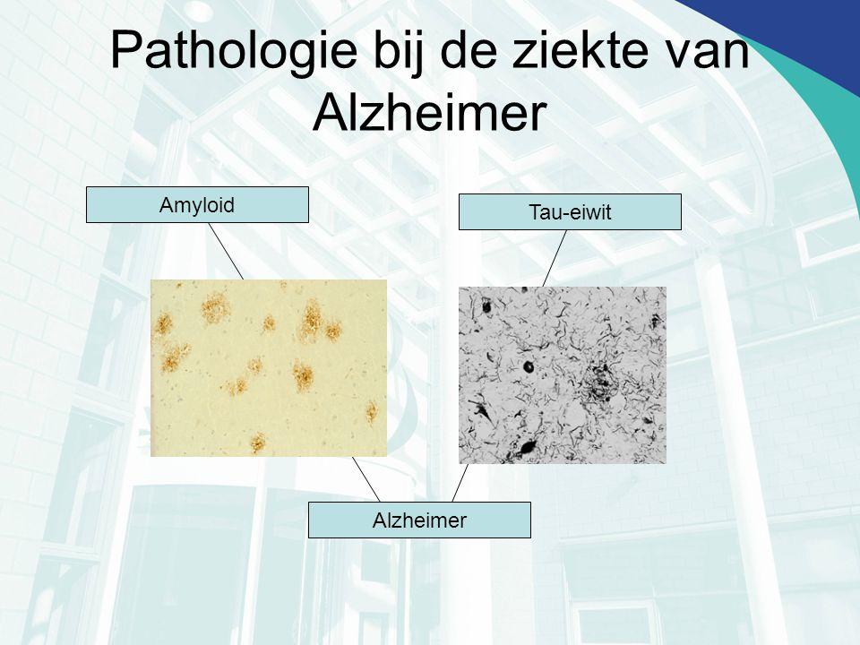 Pathologie bij de ziekte van Alzheimer Amyloid Tau-eiwit Alzheimer