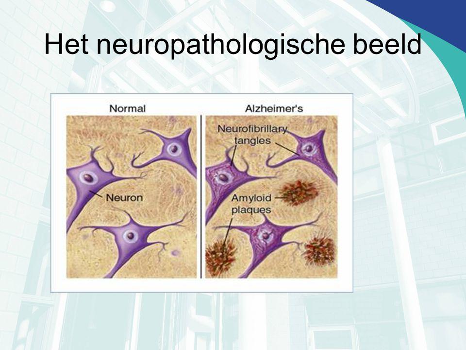 Pet scan Nieuwe ontwikkelingen Pittsburgh B compound Bind aan fibrillaire vorm van amyloïd (vroeg) FDDNP Bindt aan amyloïd plaques èn aan neurofibrillaire tangles.
