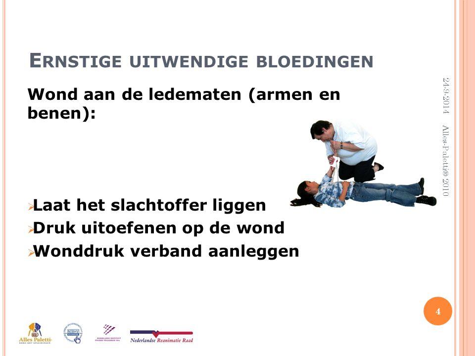 U ITWENDIGE WONDEN Kleine wonden: Zelf behandelen:  Snijwondjes  Schaafwondjes  Splinters 5 24-9-2014 Alles-Paletti® 2010