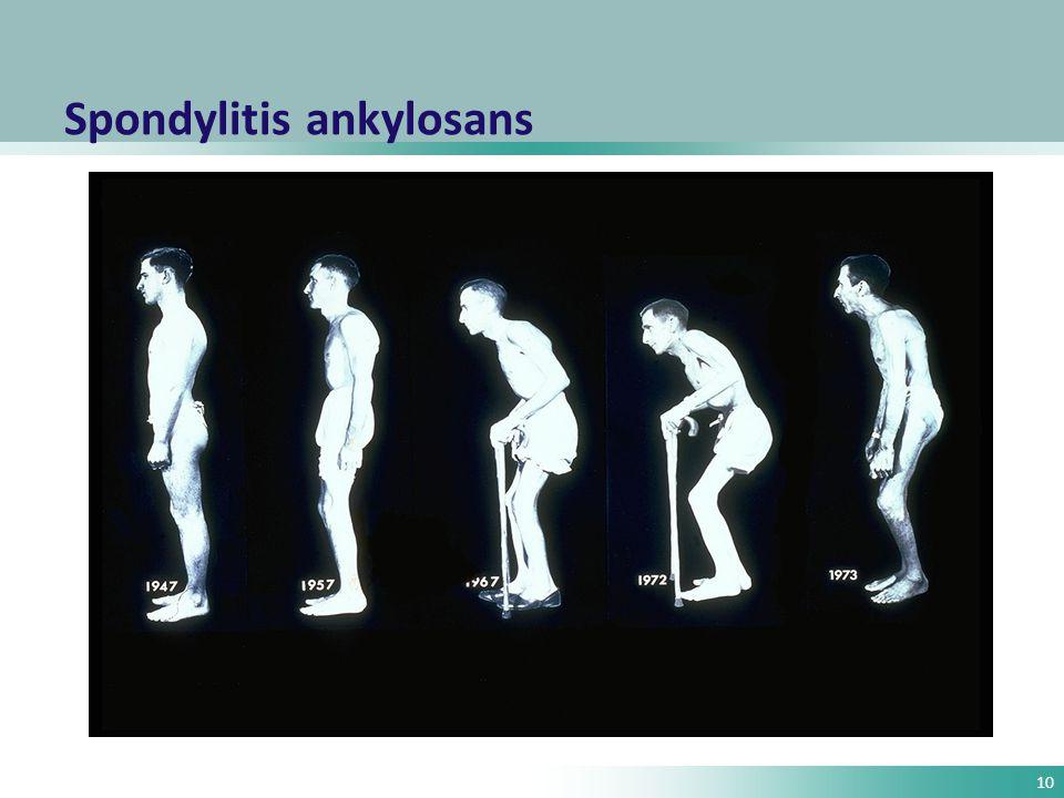 10 Spondylitis ankylosans