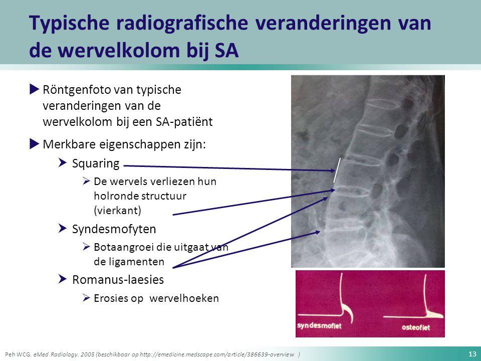 13 Typische radiografische veranderingen van de wervelkolom bij SA  Röntgenfoto van typische veranderingen van de wervelkolom bij een SA-patiënt  Me
