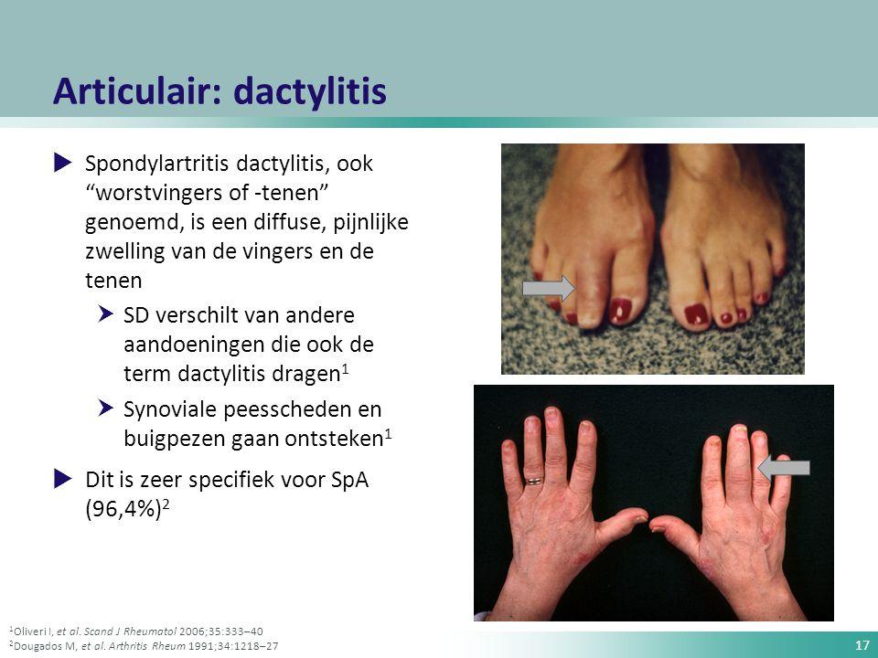 """17 Articulair: dactylitis  Spondylartritis dactylitis, ook """"worstvingers of -tenen"""" genoemd, is een diffuse, pijnlijke zwelling van de vingers en de"""