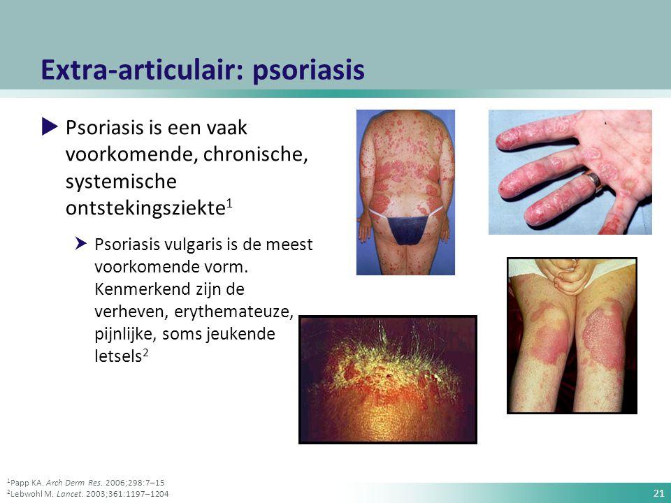 21 Extra-articulair: psoriasis  Psoriasis is een vaak voorkomende, chronische, systemische ontstekingsziekte 1  Psoriasis vulgaris is de meest voork