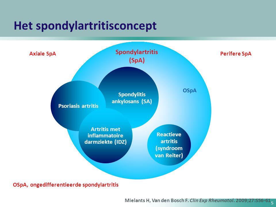 26 Gewijzigde New York-criteria voor spondylitis ankylopoetica (1984) 1.Klinische criteria: a.
