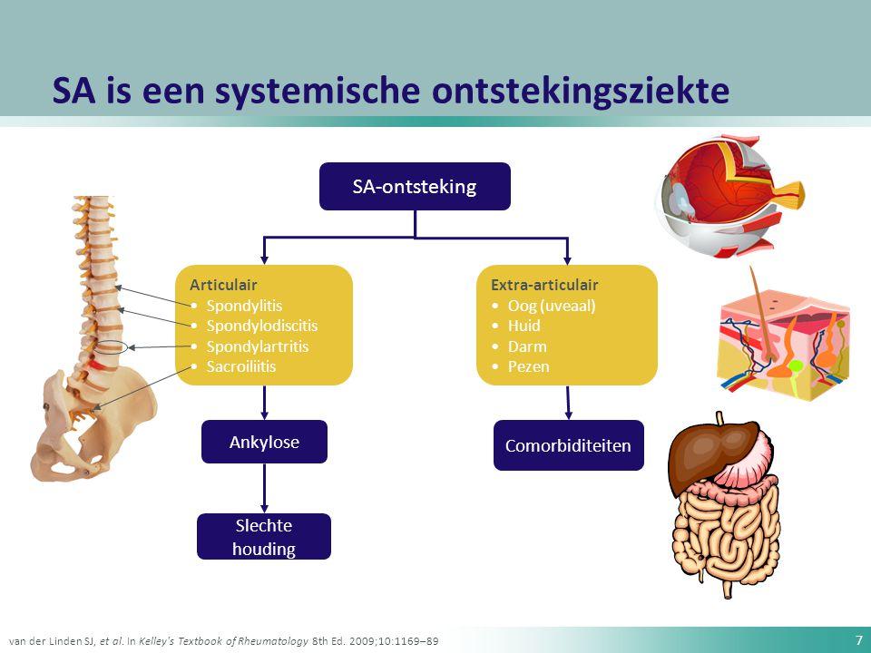 28 ASAS-/EULAR-aanbevelingen voor de behandeling van SA Educatie lichaams- beweging, fysiotherapie, revalidatie, patiënten- verenigingen, zelfhulpgroepen NSAID s Perifere ziekte Axiale ziekte Sulfasalazine TNF-remmers AnalgeticaAnalgetica Locale corticosteroïden OperatieOperatie Zochling J et al.