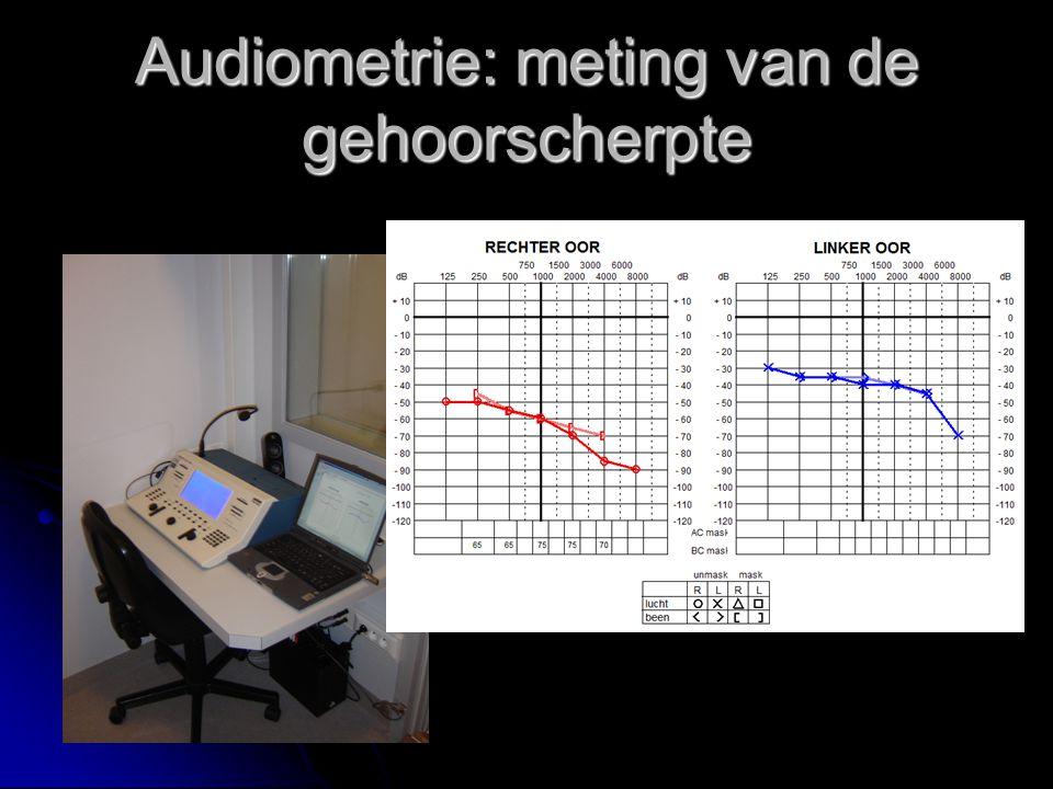 Audiometrie: meting van de gehoorscherpte