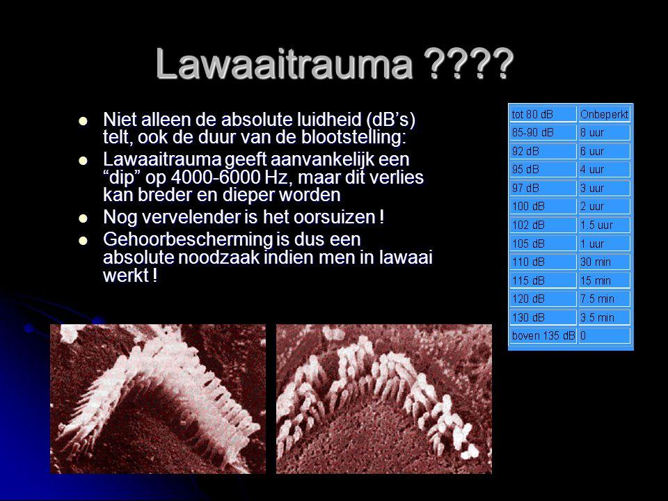 Lawaaitrauma ???? Niet alleen de absolute luidheid (dB's) telt, ook de duur van de blootstelling: Niet alleen de absolute luidheid (dB's) telt, ook de