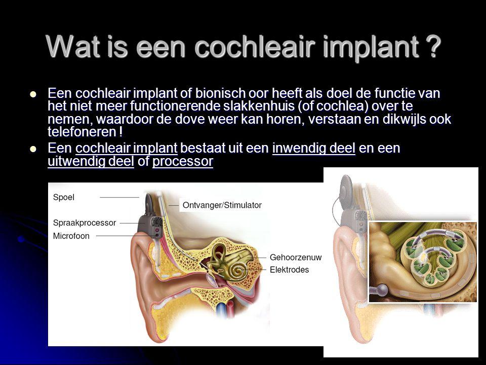 Wat is een cochleair implant ? Een cochleair implant of bionisch oor heeft als doel de functie van het niet meer functionerende slakkenhuis (of cochle