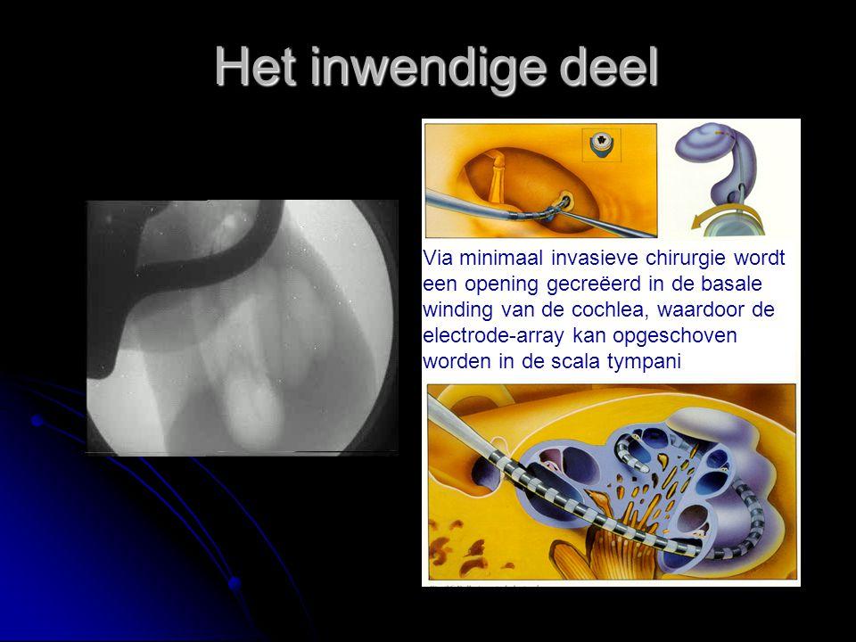 Het inwendige deel Via minimaal invasieve chirurgie wordt een opening gecreëerd in de basale winding van de cochlea, waardoor de electrode-array kan o