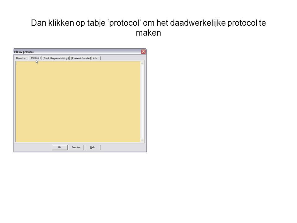 Dan klikken op tabje 'protocol' om het daadwerkelijke protocol te maken