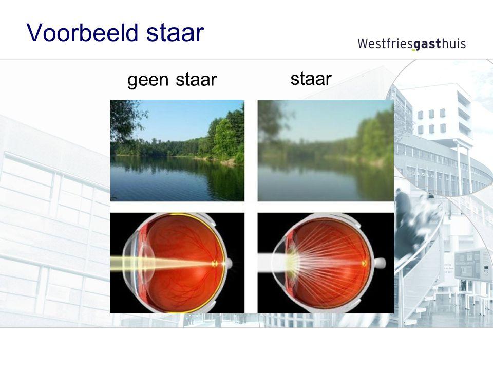 Recept oogdruppels De oogdruppels voor uw staaroperatie haalt u met een recept bij uw apotheek.