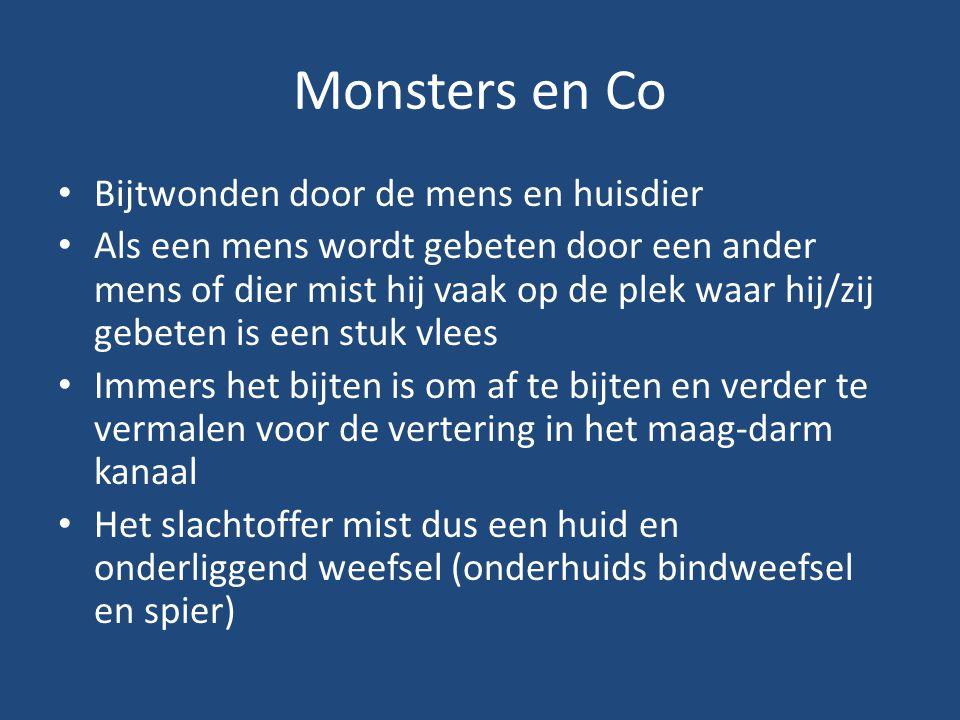 Monsters en Co Bijtwonden door de mens en huisdier Als een mens wordt gebeten door een ander mens of dier mist hij vaak op de plek waar hij/zij gebete
