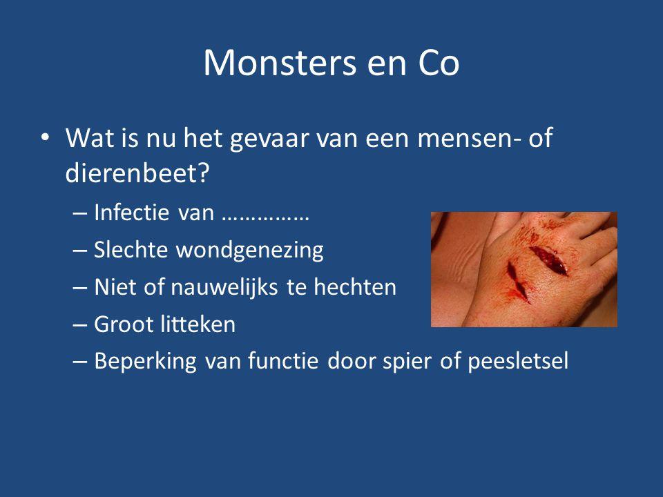 Monsters en Co Wat is nu het gevaar van een mensen- of dierenbeet? – Infectie van …………… – Slechte wondgenezing – Niet of nauwelijks te hechten – Groot