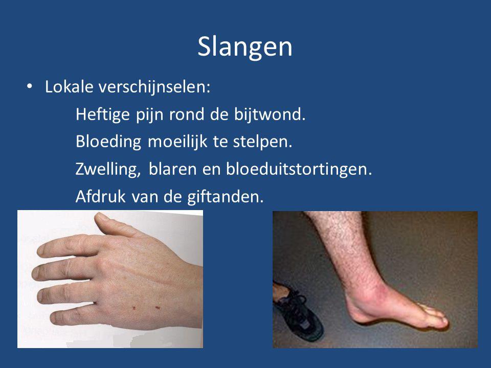 Slangen Lokale verschijnselen: Heftige pijn rond de bijtwond. Bloeding moeilijk te stelpen. Zwelling, blaren en bloeduitstortingen. Afdruk van de gift